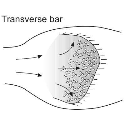 Transverse bar (linguoid bar)