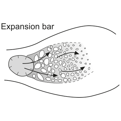 Expansion bar